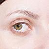 白目に血が!目から出血した場合の原因と対処法について